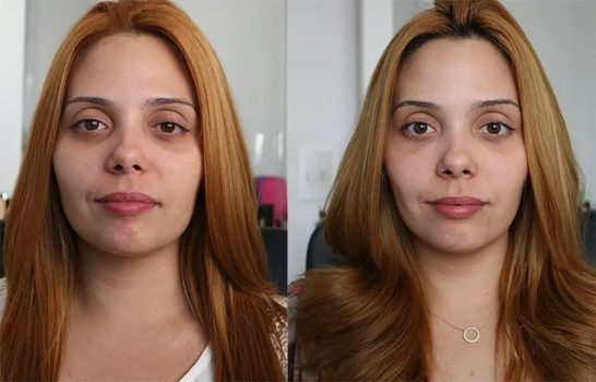 acido-hialuronico-beleza-pele-recuperacao